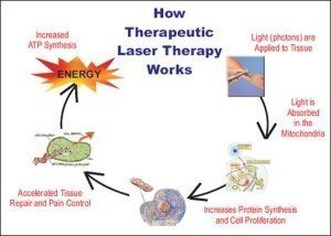 A chart showing how therapeutic laser therapy works